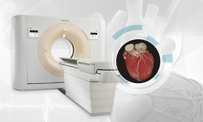 Tomografía Cardíaca Multislice